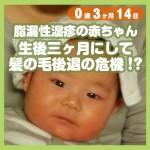 0-03-14_脂漏性湿疹の赤ちゃん、生後三ヶ月にして髪の毛後退の危機!?_500