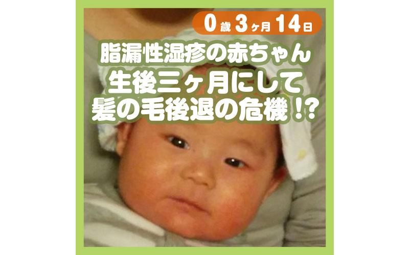 0-03-14_脂漏性湿疹の赤ちゃん、生後三ヶ月にして髪の毛後退の危機!?_800