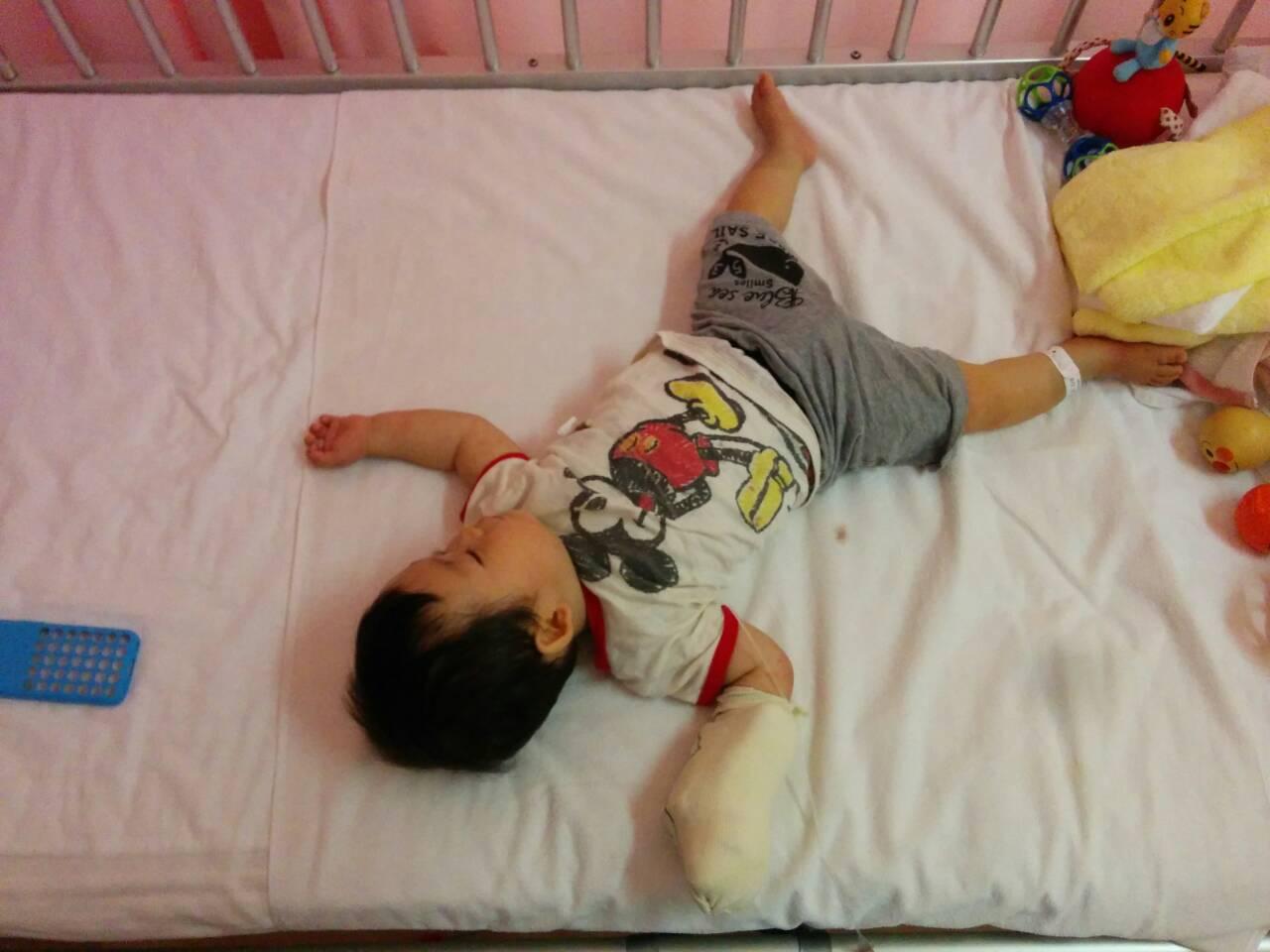 赤ちゃん10ヶ月RSウイルス入院